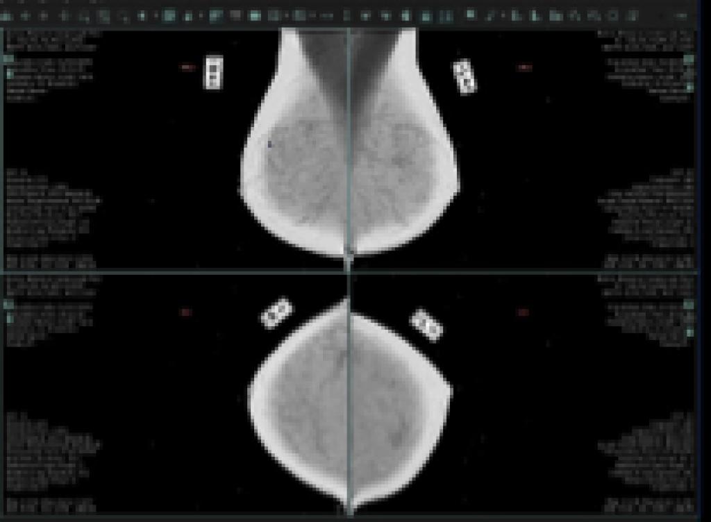 ge healthcare digital breast tomosynthesis