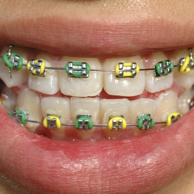 Coloured braces ridge meadows orthodontics maple ridge bc on the other hand if youre getting traditional steel braces your brackets and wires will be silver solutioingenieria Choice Image