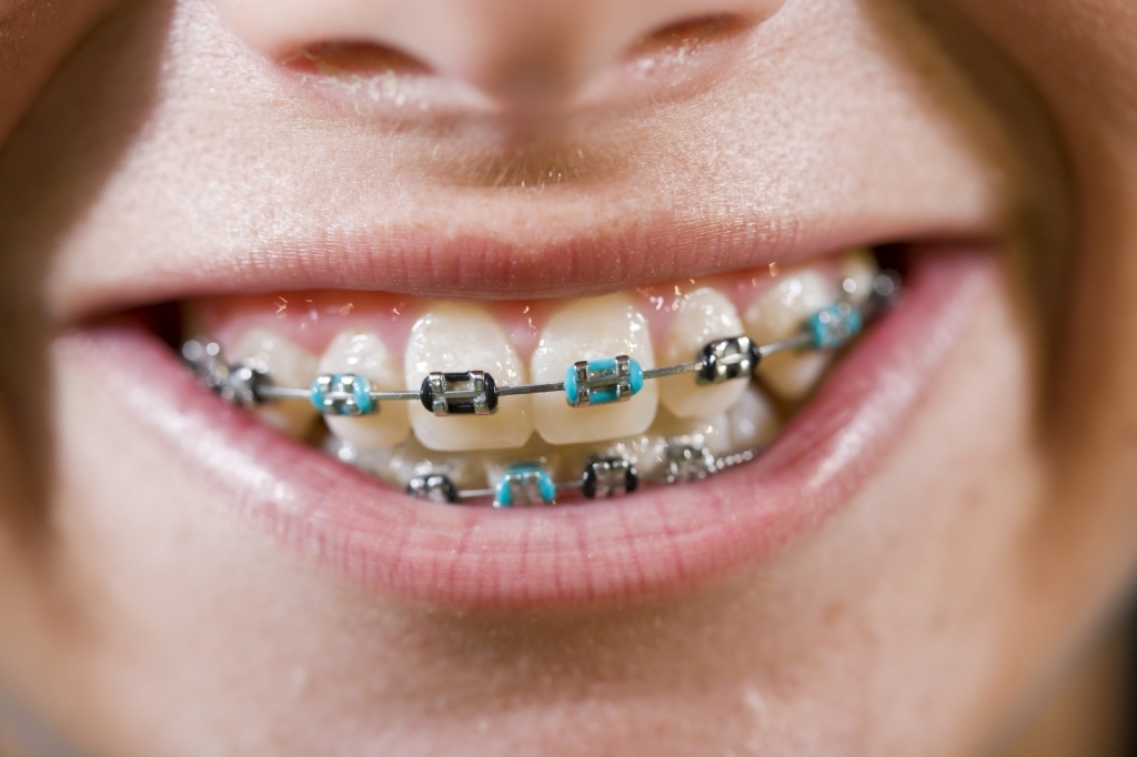 Coloured Braces | Ridge Meadows Orthodontics | Maple Ridge, BC