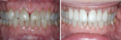 Before & After - Veneers