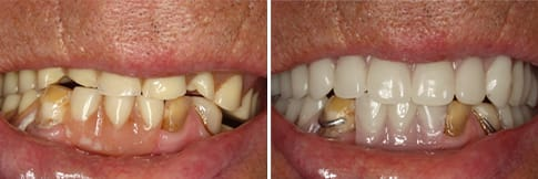 Before & After - Dentures