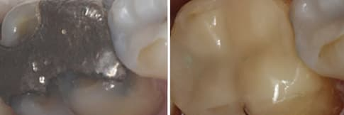 Before & After - Fillings