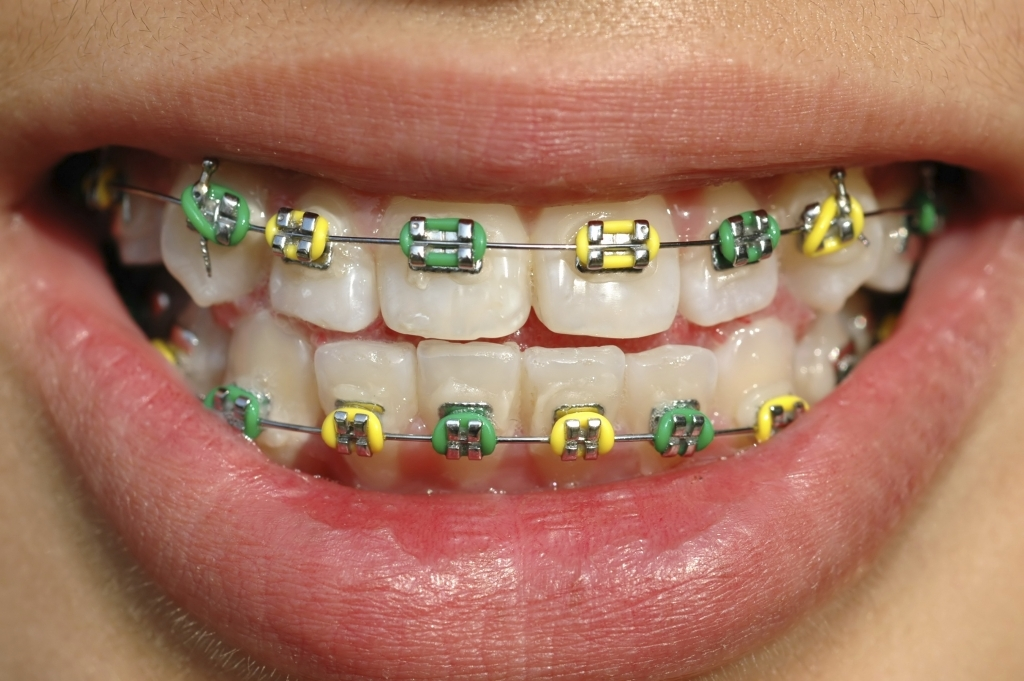 Coloured braces coquitlam family orthodontics coquitlam bc choosing coloured braces means youve embraced your new look and instead of trying to hide it youve decided to use it to express yourself solutioingenieria Choice Image
