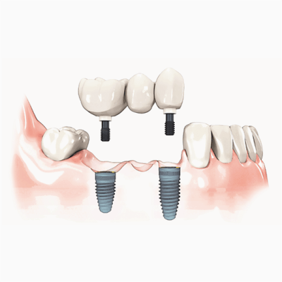 Implant supported bridge to replace missing teeth