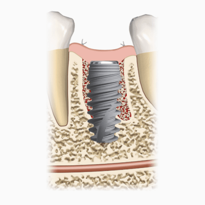 Implant is man made root used to replace missing tooth