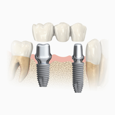 Ceramic teeth cemented onto implant support