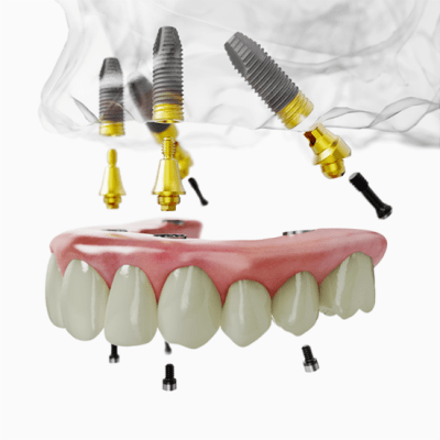 All-on-4 implant technique to support denture on top firmly