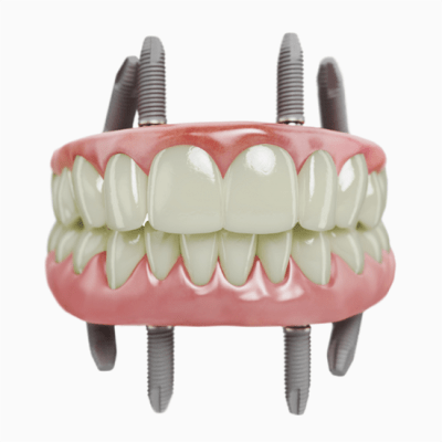 All-on-4 implant technique to support upper and lower dentures