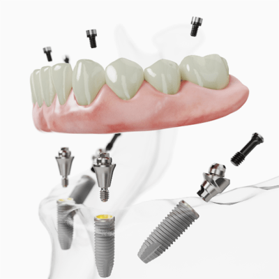 All-on-4 implant technique for lower denture support