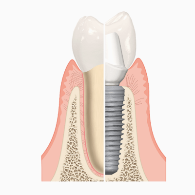 Natural tooth vs. implant root