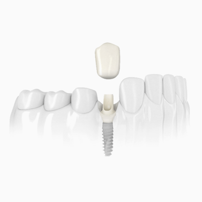 Single implant therapy to replace a single tooth
