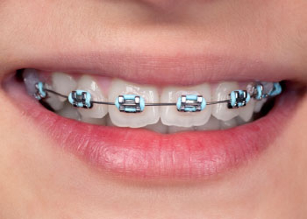 Coloured Braces | Langley Orthodontics | BC