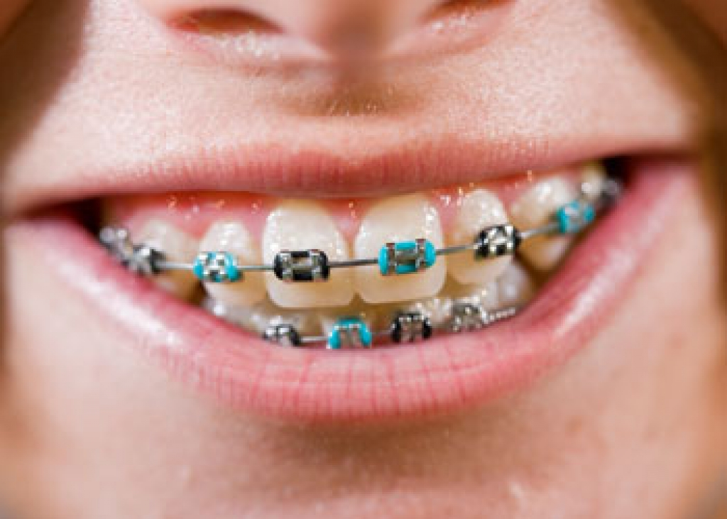 Coloured Braces Langley Orthodontics Bc